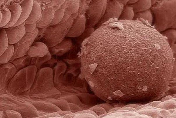 Женские яйцеклетки удивили ученых: они активно росли после химиотерапии. яйцеклетка