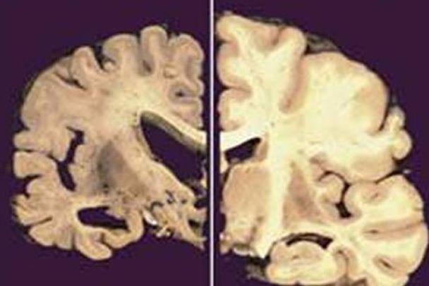 Болезнь Альцгеймера: американцы пошли другим путем. альцгеймера