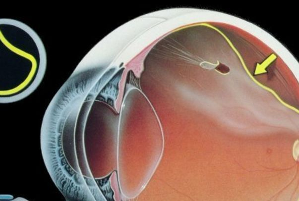 Глаза расскажут, когда вас разобьет инсульт. сетчатка